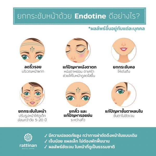 Endotine ยกกระชับใบหน้า ดีอย่างไร