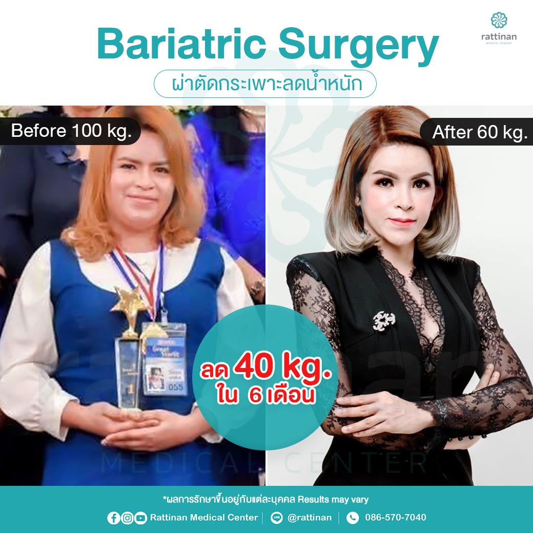 รีวิว ผ่าตัดกระเพาะ ลดน้ำหนัก รักษาโรคอ้วน แบบ Bypass ที่รัตตินันท์ เมดิคอล เซ็นเตอร์