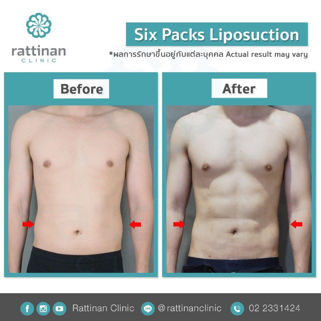 ดูดไขมันซิกแพค sixpack liposuction ที่รัตตินันท์ เมดิคคอล เซ็นเตอร์